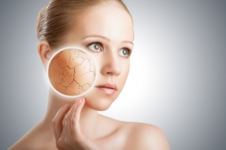 Hard Water Dry Skin